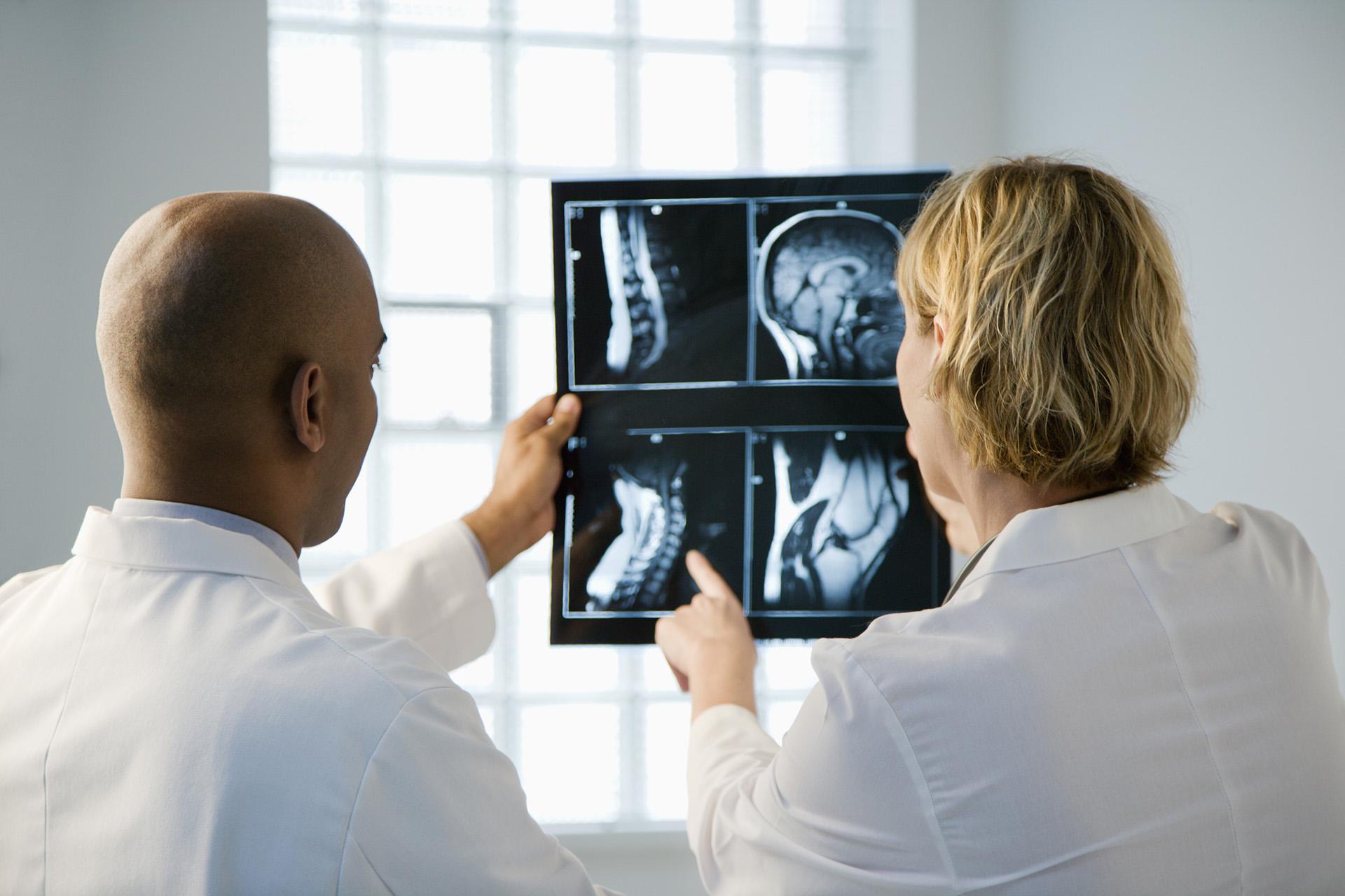 Wat zijn tumoren bij de rugwervels?