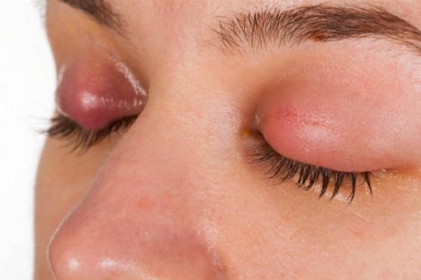 gezwollen oogleden
