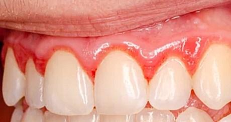 Tandvleesontsteking - gingivitis